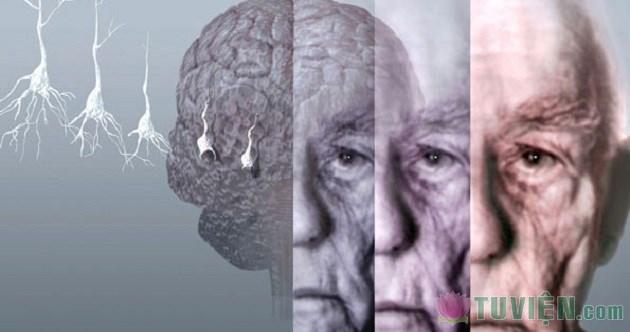 benh-Alzheimer.jpg